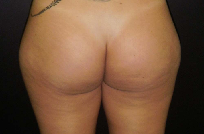 Before-Gluteoplastia