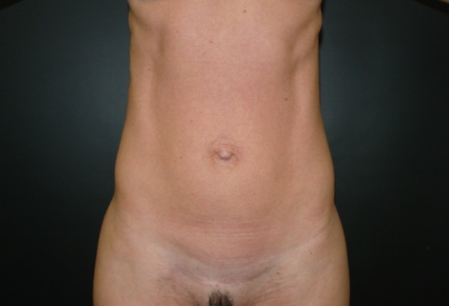 Before-Onfaloplastias